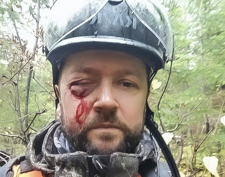 Un Charlevoisien survit à la charge d'un orignal