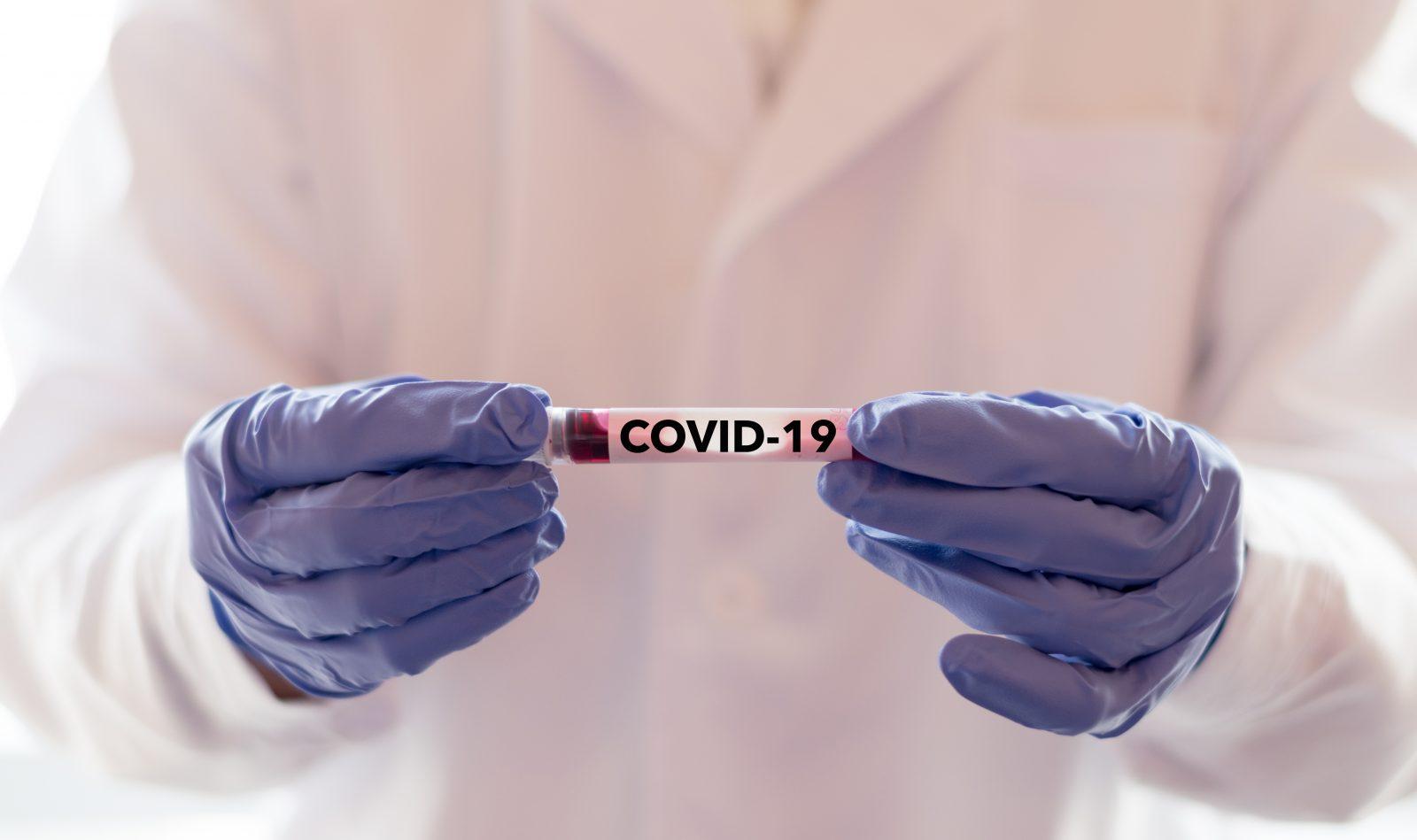 COVID-19: Charlevoix connaît une stabilité pour les cas actifs